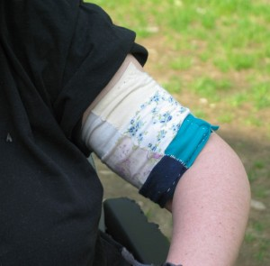 Closeup of Sharon's upper arm and elbow. Above the elbow is a sleeve made out of several small squares of different-colored fabric, stitched together like a quilt, mostly pastels and prints in pink, blue, purple, and white.