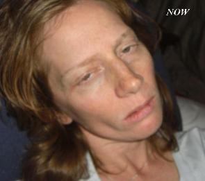 Close-up of a woman whose face is gaunt and emaciated. Her eyelids are half closed; it appears as if she's not able to open them all the way nor that she has control over her other facial muscles, which are slack. Her hair is brown and limp. The picture is taken from above, with a pillow behind her head.
